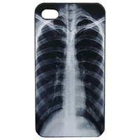Iphone 4 Case with Skeleton Pattern