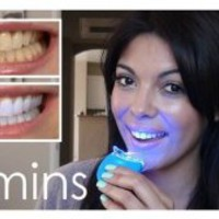 Dial a Smile Teeth Whitening Kit